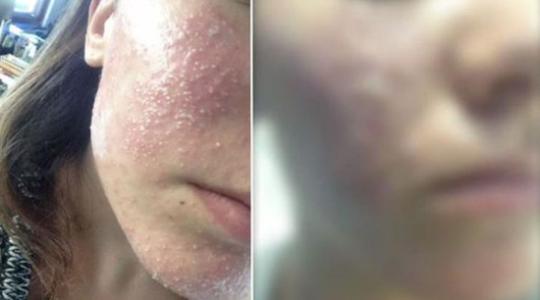 Melbourne: Salon làm đẹp khiến khách hàng bị nhiễm khuẩn cầu đau đớn trên mặt