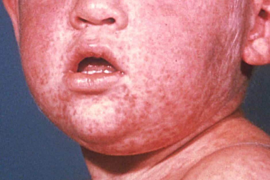 Một trong những triệu chứng mắc sởi là các nốt ban đỏ lan rộng từ mặt, đầu tới toàn thân.
