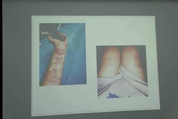 Không được đi du học, nữ sinh 21 tuổi dùng dao lam rạch tay, tự hủy hoại bản thân - Ảnh 1.