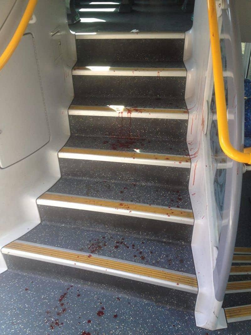Sydney: Hình ảnh hiện trường vụ tàu đâm vào rào chắn: tàu bị hư hại, máu vương vãi khắp sàn - ảnh 4