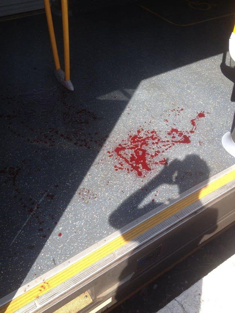 Sydney: Hình ảnh hiện trường vụ tàu đâm vào rào chắn: tàu bị hư hại, máu vương vãi khắp sàn - ảnh 3