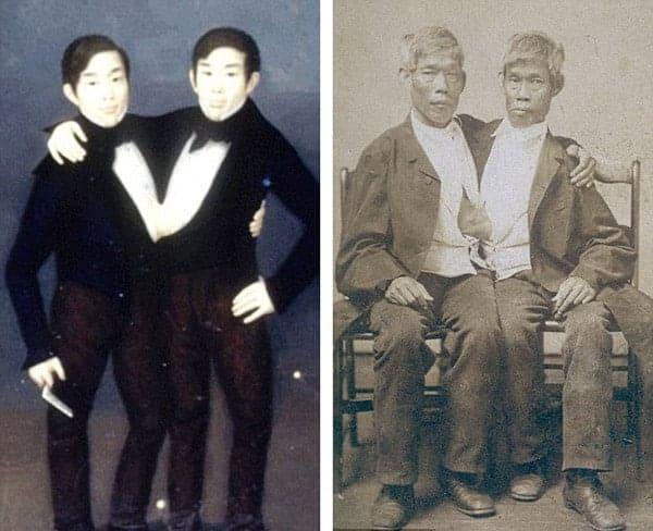 Ly kỳ đời sống của cặp song sinh dính liền thân vẫn lấy vợ, sinh tổng cộng 21 đứa con - Ảnh 2.