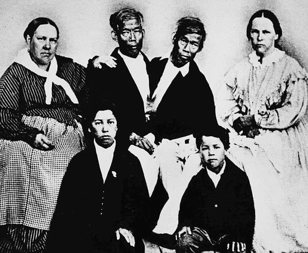 Ly kỳ đời sống của cặp song sinh dính liền thân vẫn lấy vợ, sinh tổng cộng 21 đứa con - Ảnh 7.