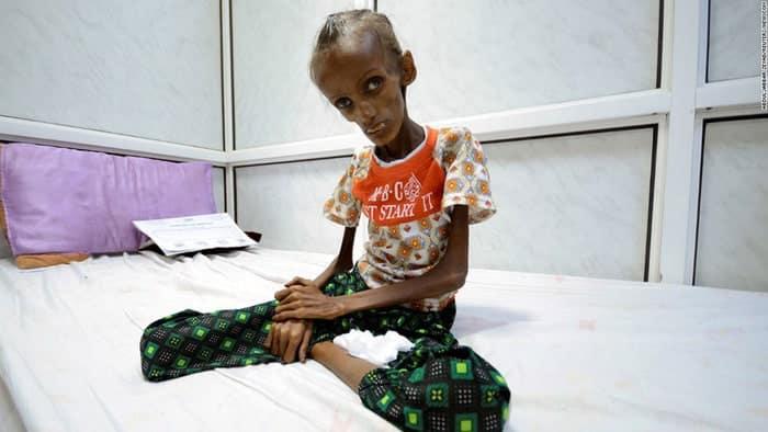 Ở Yemen, đến khóc cũng không còn nước mắt vì đói khát - Ảnh 2.