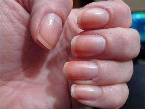 Đừng chủ quan nếu móng tay của bạn bỗng nhiên có những dấu hiệu bất thường này