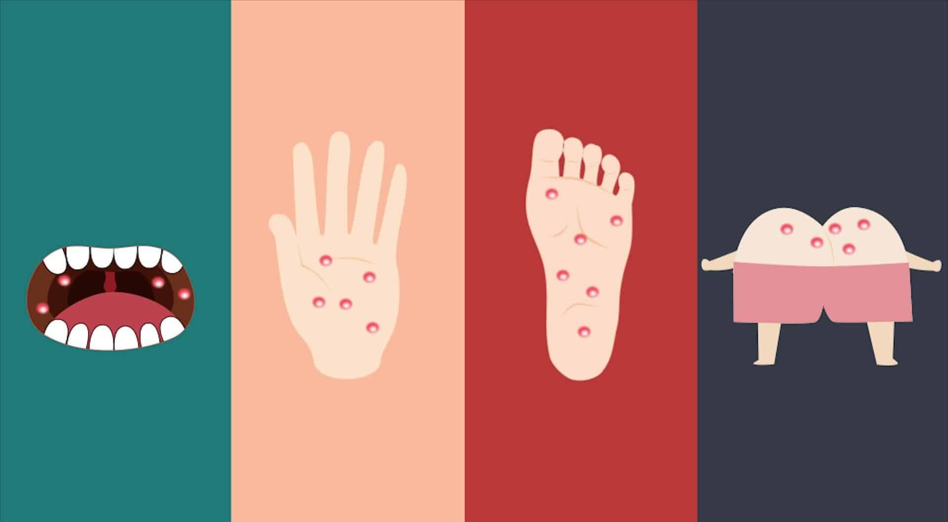 Bệnh tay chân miệng đang vào mùa dịch và dưới đây là những điều mà cả người lớn lẫn trẻ nhỏ đều phải biết - Ảnh 2.