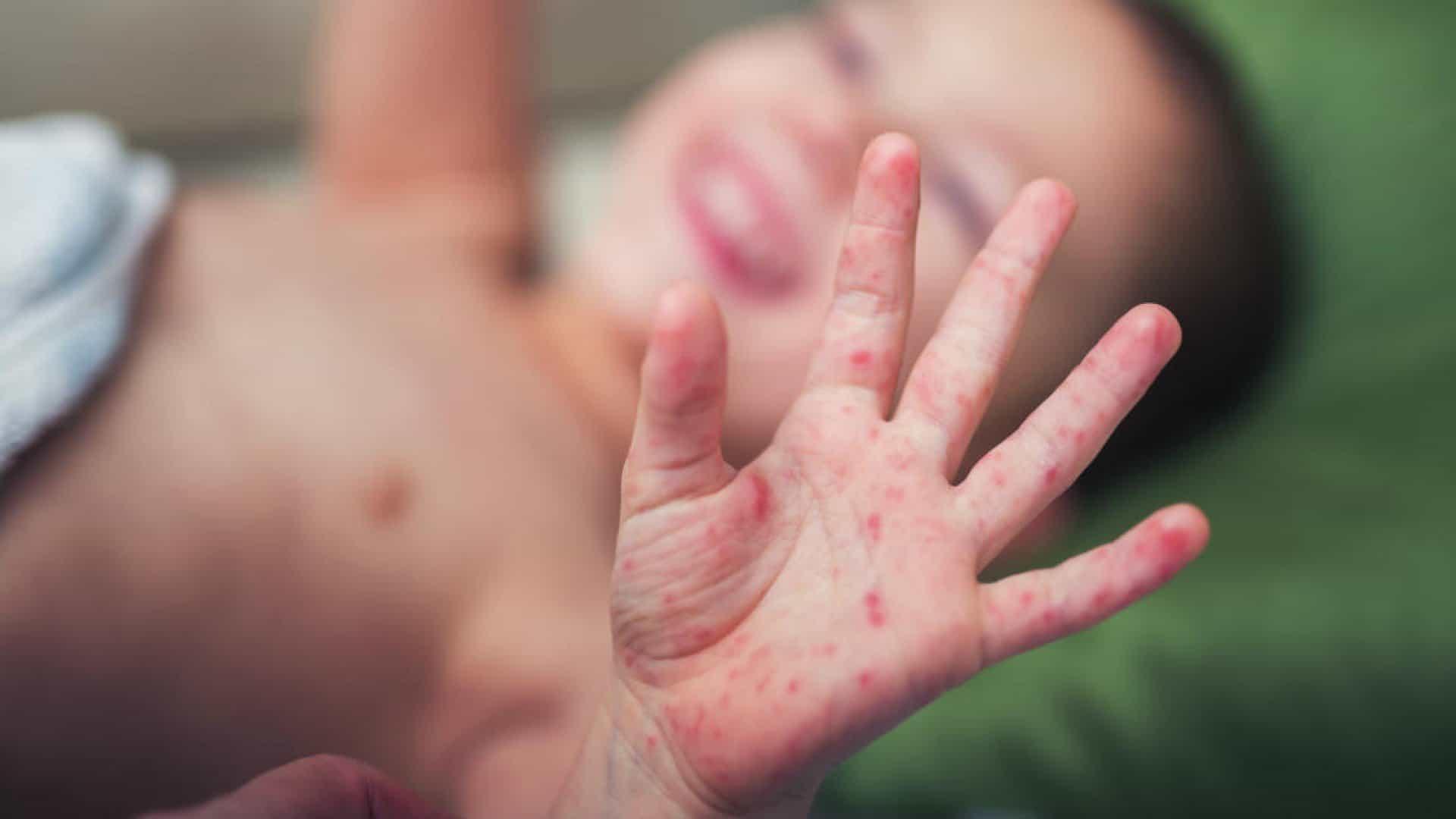 Bệnh tay chân miệng đang vào mùa dịch và dưới đây là những điều mà cả người lớn lẫn trẻ nhỏ đều phải biết - Ảnh 3.