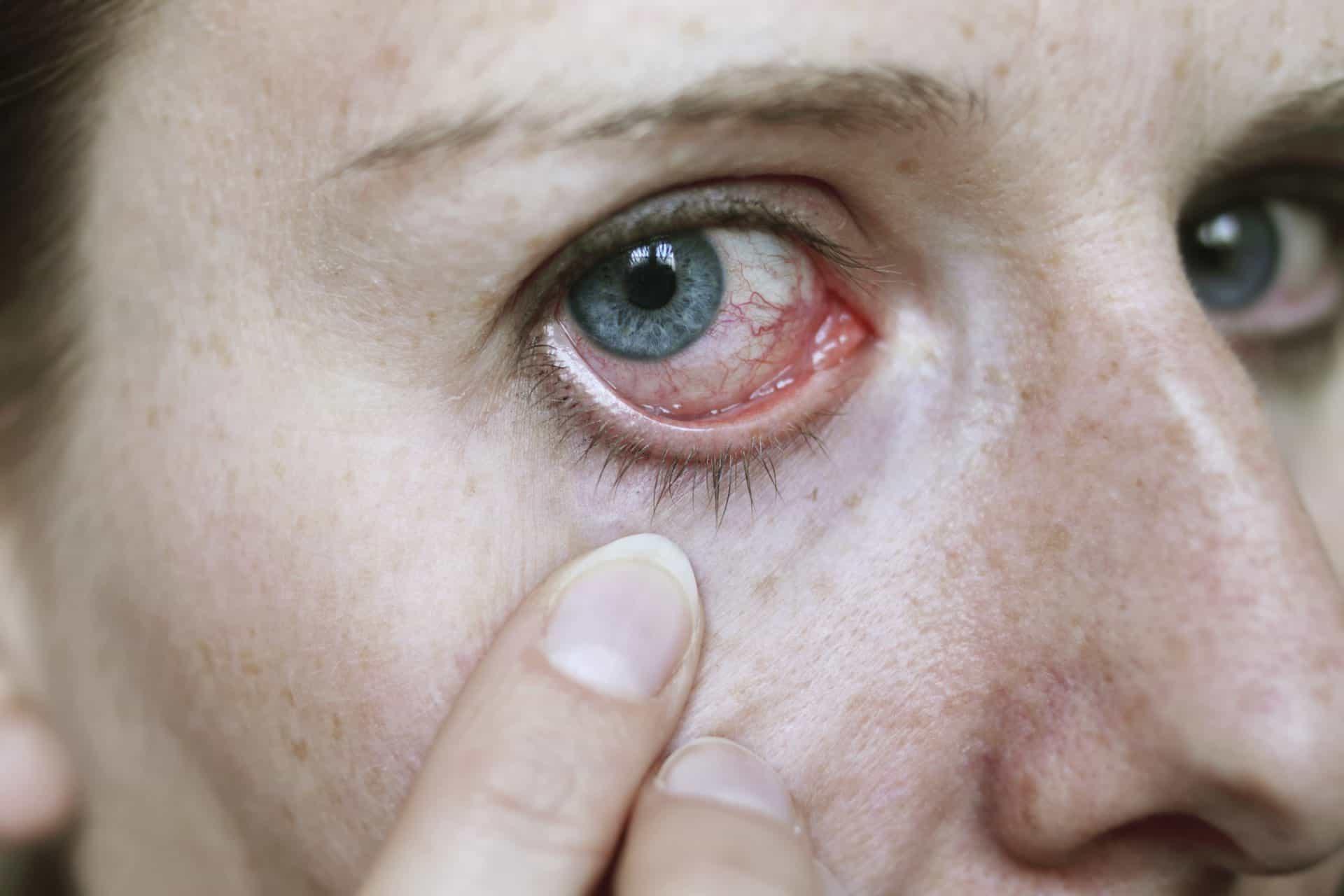 Thường xuyên giật mí mắt có thể là do một số vấn đề sức khỏe tai hại dưới đây - Ảnh 1.