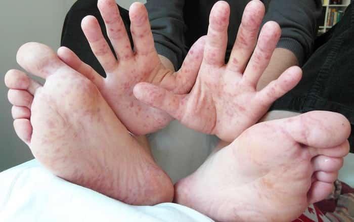 Bệnh tay chân miệng đang vào mùa dịch và dưới đây là những điều mà cả người lớn lẫn trẻ nhỏ đều phải biết - Ảnh 4.
