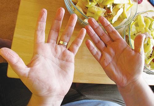 Nhìn tay đoán bệnh nhờ 5 dấu hiệu cảnh báo dễ nhận thấy nhất