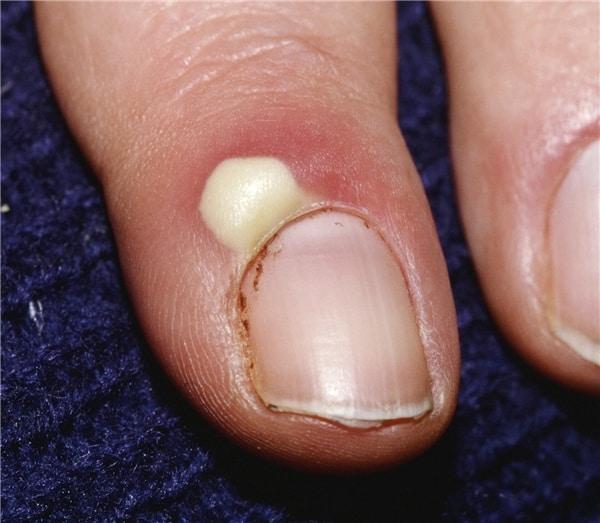 Hội chứng Paronychia ở móng tay.